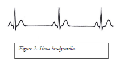 conduction system of the heart and electrocardiography