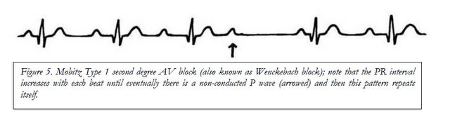 How to read an electrocardiogram (ECG)  Part 2