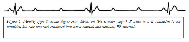 Mobitz Type 2 Is Distinguished From Mobitz Type 1 AV Block By The Fact That  There Is No Prolongation Of The PR Interval In Type 2.  2 1 Degree