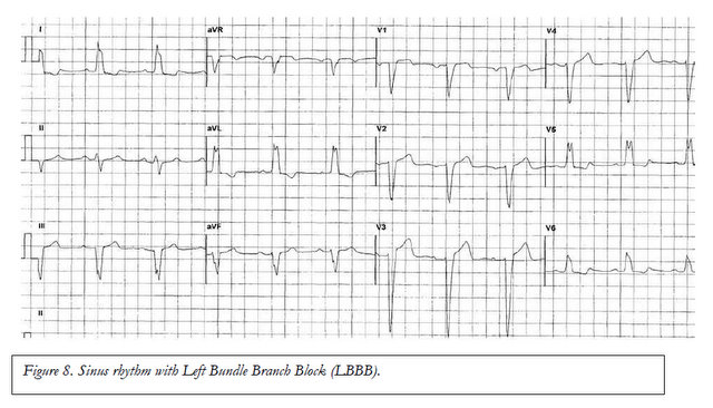 how to read an electrocardiogram (ecg). part 2: abnormalities of