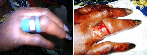 Stuck objects on fingers pattern seen in a Nigerian teaching