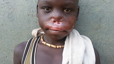 The Faces Of Tuberculosis