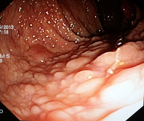 Neoplasm Of The Colon A Clinical Quiz