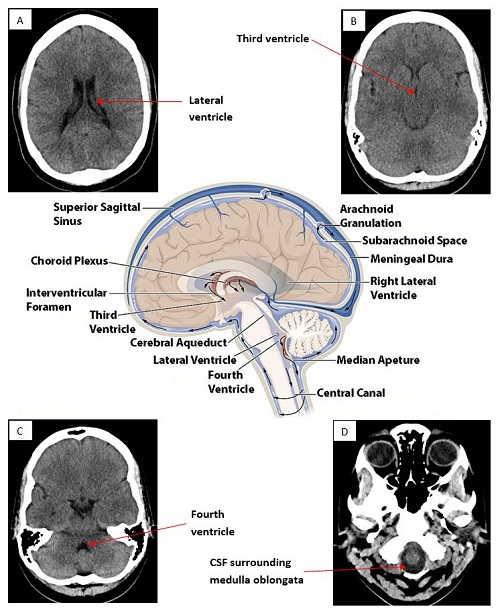 How to interpret an unenhanced ct brain scan part 1 basic part 1 figure 4 ct axial slices at different levels of the ventricular system with a central image depicting normal csf flow ccuart Images