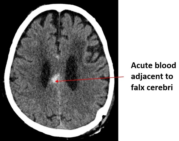 How To Interpret An Unenhanced Ct Brain Scan Part 2 Clinical Cases