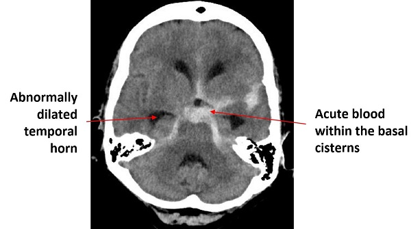 How to interpret an unenhanced CT Brain scan. Part 2: Clinical cases